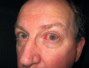 FreshandClean: Infection Prevention and Control - Conjunctivitis